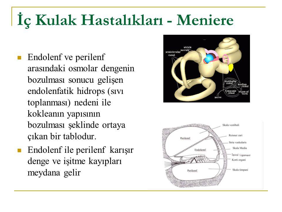 İç Kulak Hastalıkları - Meniere Endolenf ve perilenf arasındaki osmolar dengenin bozulması sonucu gelişen endolenfatik hidrops (sıvı toplanması) neden