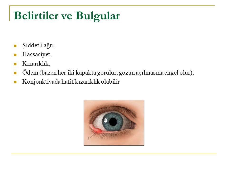 Belirtiler ve Bulgular Şiddetli ağrı, Hassasiyet, Kızarıklık, Ödem (bazen her iki kapakta görülür, gözün açılmasına engel olur), Konjonktivada hafif k