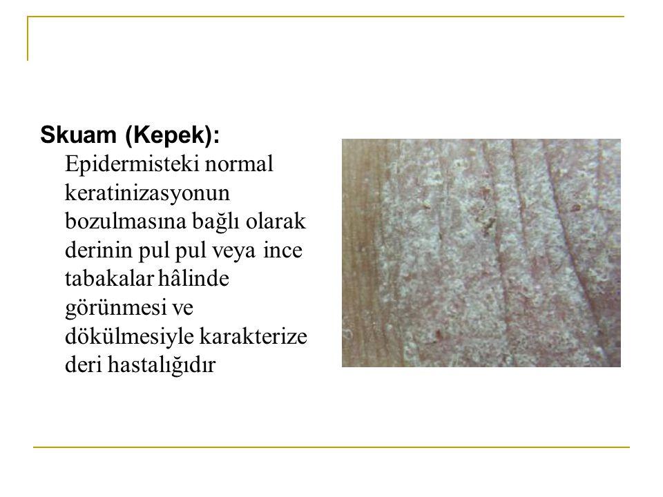 Skuam (Kepek): Epidermisteki normal keratinizasyonun bozulmasına bağlı olarak derinin pul pul veya ince tabakalar hâlinde görünmesi ve dökülmesiyle ka