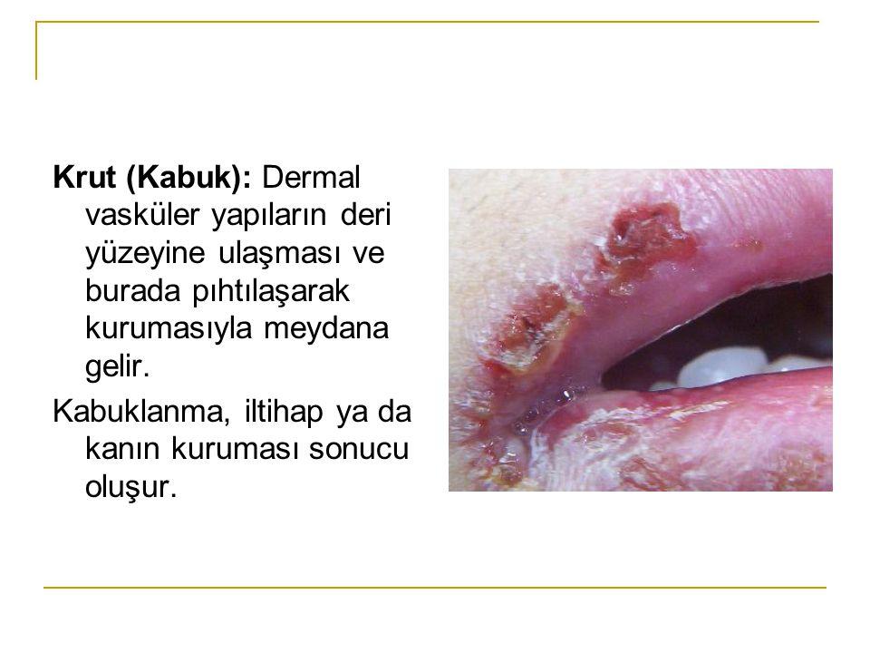 Krut (Kabuk): Dermal vasküler yapıların deri yüzeyine ulaşması ve burada pıhtılaşarak kurumasıyla meydana gelir. Kabuklanma, iltihap ya da kanın kurum
