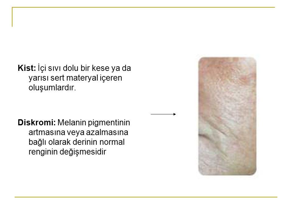 Kist: İçi sıvı dolu bir kese ya da yarısı sert materyal içeren oluşumlardır. Diskromi: Melanin pigmentinin artmasına veya azalmasına bağlı olarak deri