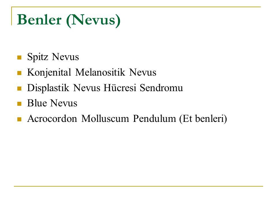 Benler (Nevus) Spitz Nevus Konjenital Melanositik Nevus Displastik Nevus Hücresi Sendromu Blue Nevus Acrocordon Molluscum Pendulum (Et benleri)