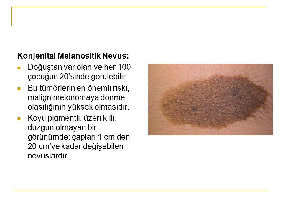Konjenital Melanositik Nevus: Doğuştan var olan ve her 100 çocuğun 20'sinde görülebilir Bu tümörlerin en önemli riski, malign melonomaya dönme olasılı