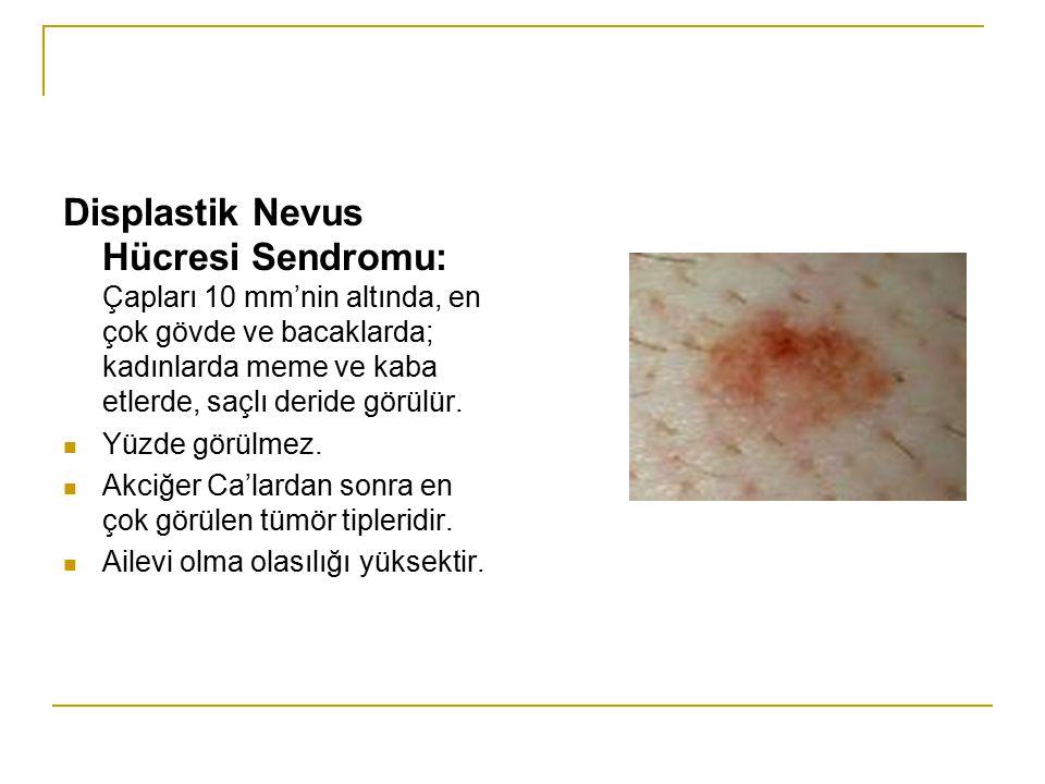 Displastik Nevus Hücresi Sendromu: Çapları 10 mm'nin altında, en çok gövde ve bacaklarda; kadınlarda meme ve kaba etlerde, saçlı deride görülür. Yüzde