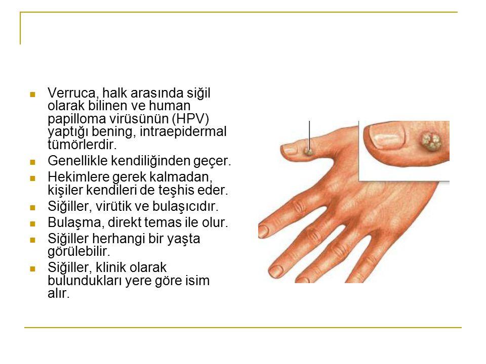 Verruca, halk arasında siğil olarak bilinen ve human papilloma virüsünün (HPV) yaptığı bening, intraepidermal tümörlerdir. Genellikle kendiliğinden ge