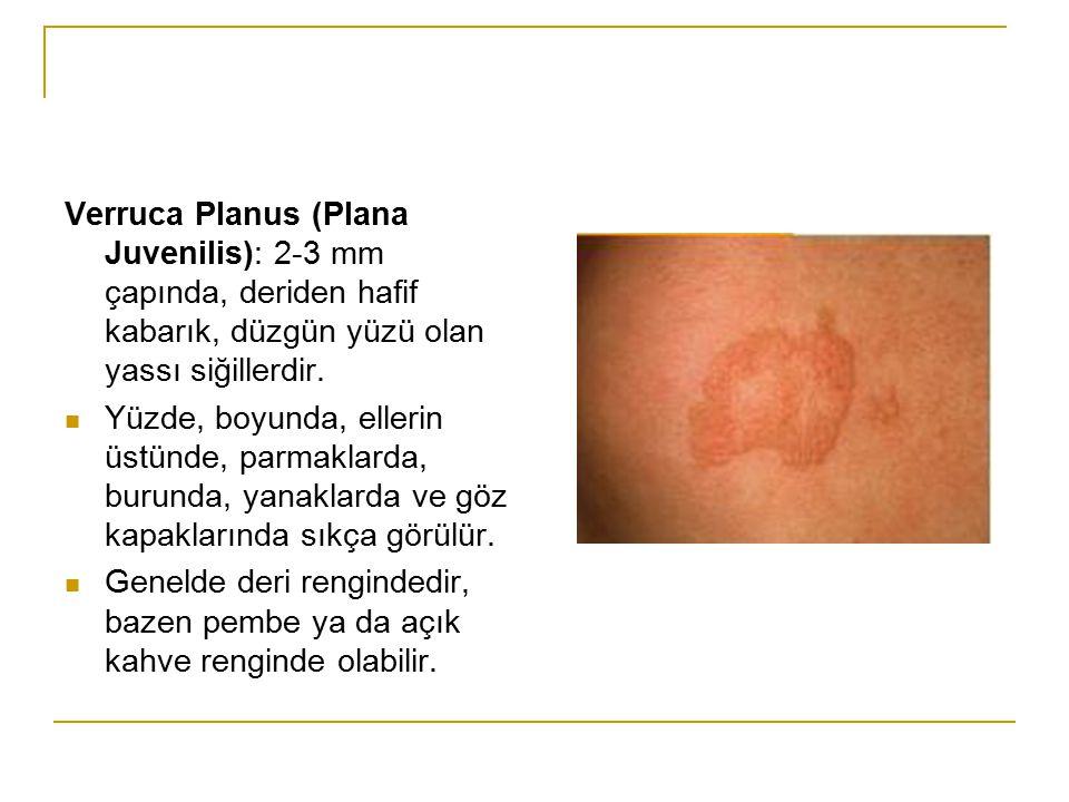 Verruca Planus (Plana Juvenilis): 2-3 mm çapında, deriden hafif kabarık, düzgün yüzü olan yassı siğillerdir. Yüzde, boyunda, ellerin üstünde, parmakla