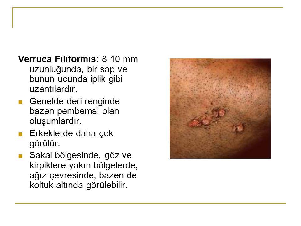 Verruca Filiformis: 8-10 mm uzunluğunda, bir sap ve bunun ucunda iplik gibi uzantılardır. Genelde deri renginde bazen pembemsi olan oluşumlardır. Erke