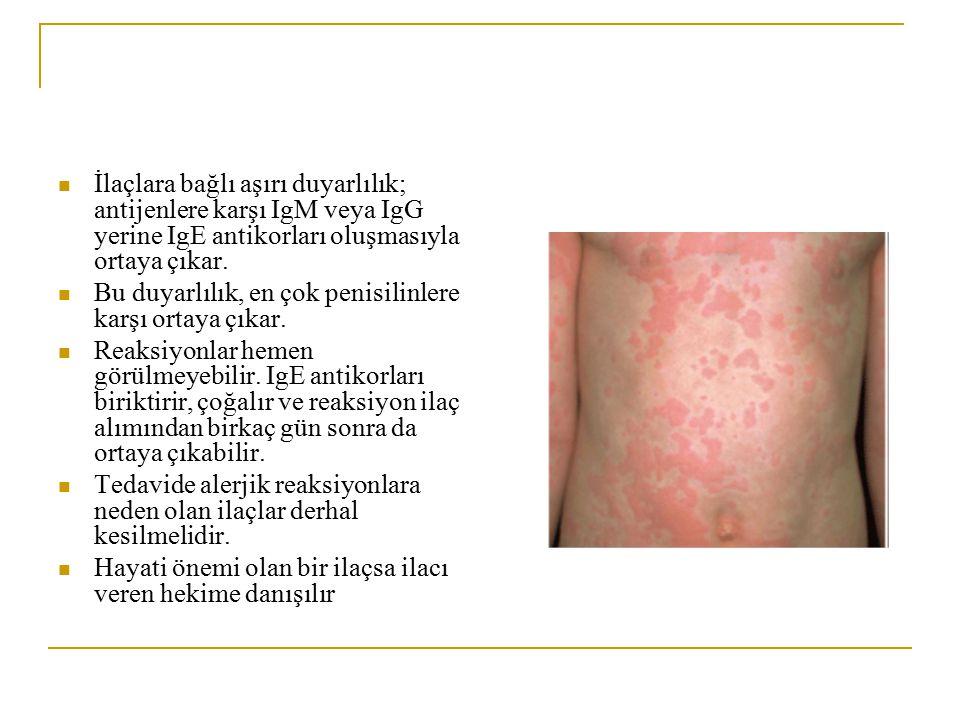 İlaçlara bağlı aşırı duyarlılık; antijenlere karşı IgM veya IgG yerine IgE antikorları oluşmasıyla ortaya çıkar. Bu duyarlılık, en çok penisilinlere k