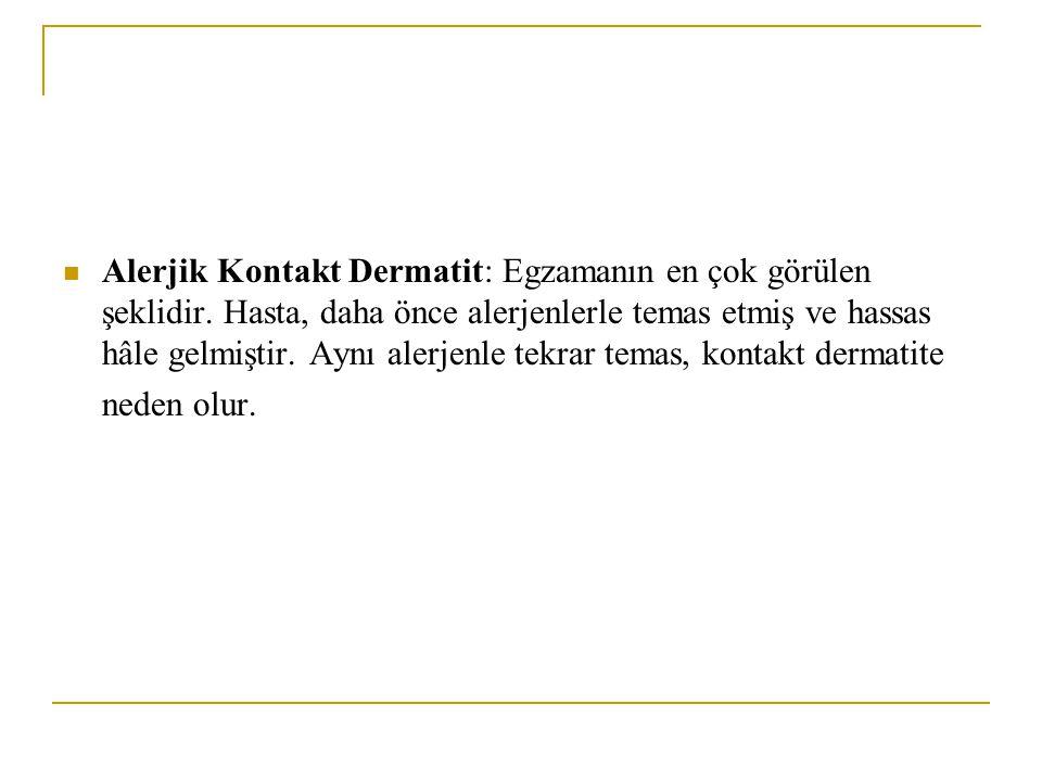 Alerjik Kontakt Dermatit: Egzamanın en çok görülen şeklidir. Hasta, daha önce alerjenlerle temas etmiş ve hassas hâle gelmiştir. Aynı alerjenle tekrar
