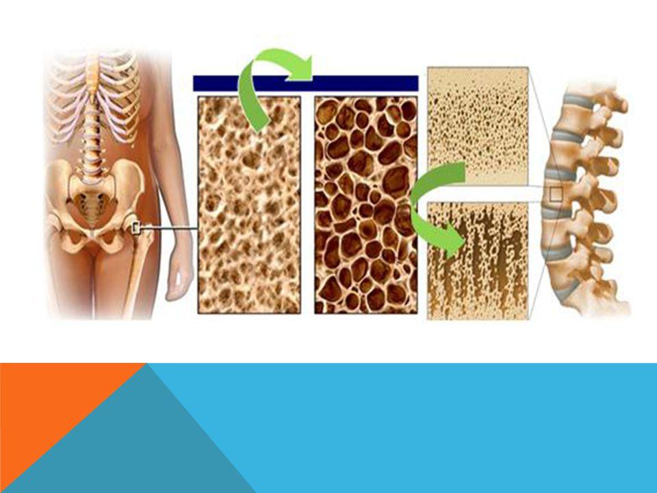 OSTEOPOROZDA RISK FAKTÖRLERI ŞUNLARDıR Erişkin dönemde kırık Kadın olmak 50 yaĢ üstü Menopoza girmiş olmak Östrojen düşüklüğü Testosteronda azalma Kötü beslenme (Kalsiyum eksikliği ve yetersiz D vitamin alımı) Fizik aktivite azlığı Birinci derece akrabalarda osteoporoz