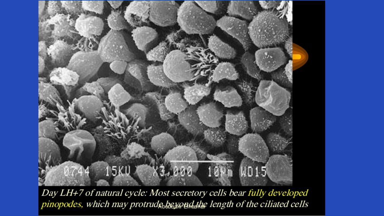 Mikrobiom Metagenomik çalışmalar Vajinal mikroflora IVF başarısını etkiliyor Kateter ucunda H 2 O 2 -üreten laktobasil görülmesi gebelik şansını artırıyor Lactobasillus crispatus Tedavi: Probiyotik.