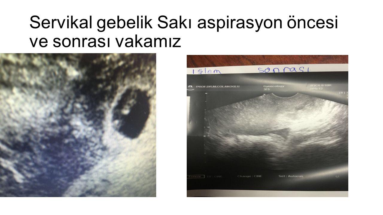 Servikal gebelik Sakı aspirasyon öncesi ve sonrası vakamız