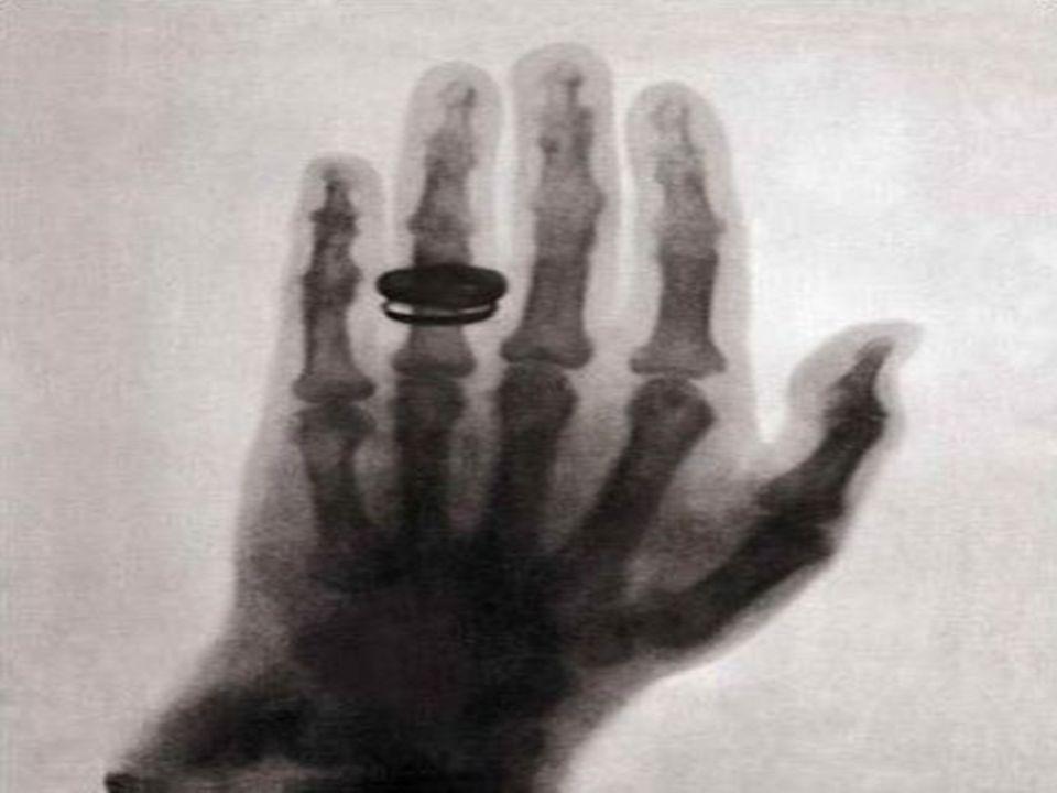 X-ışınları 1895 Aralık ayında tıp alanında ilk kez kullanılmış bir hastanın bacağına saplanan kurşunun yeri x-ışınları yardımıyla belirlenmiştir Röntgen'in x-ışınlarını keşfinden 3 ay sonra H.Antonie Becquerel de x ışınları üzerinde çalıştı ve radyoaktifliği tamamladı.