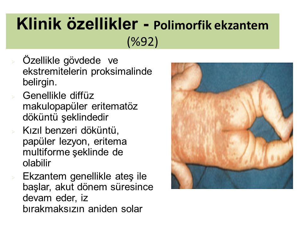Klinik özellikler - Polimorfik ekzantem (%92)  Özellikle gövdede ve ekstremitelerin proksimalinde belirgin.  Genellikle diffüz makulopapüler eritema