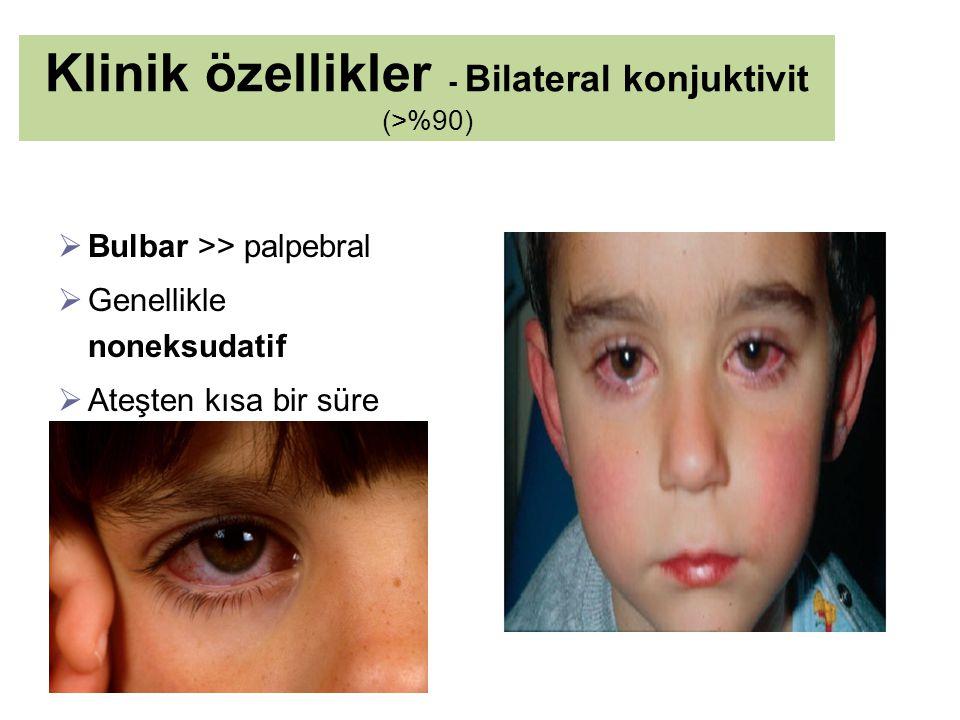 Klinik özellikler - Bilateral konjuktivit (>%90)  Bulbar >> palpebral  Genellikle noneksudatif  Ateşten kısa bir süre sonra başlar