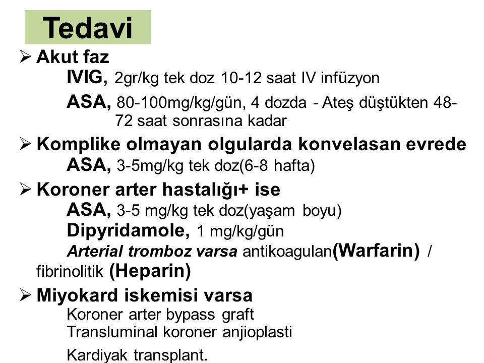 Tedavi  Akut faz IVIG, 2gr/kg tek doz 10-12 saat IV infüzyon ASA, 80-100mg/kg/gün, 4 dozda - Ateş düştükten 48- 72 saat sonrasına kadar  Komplike ol