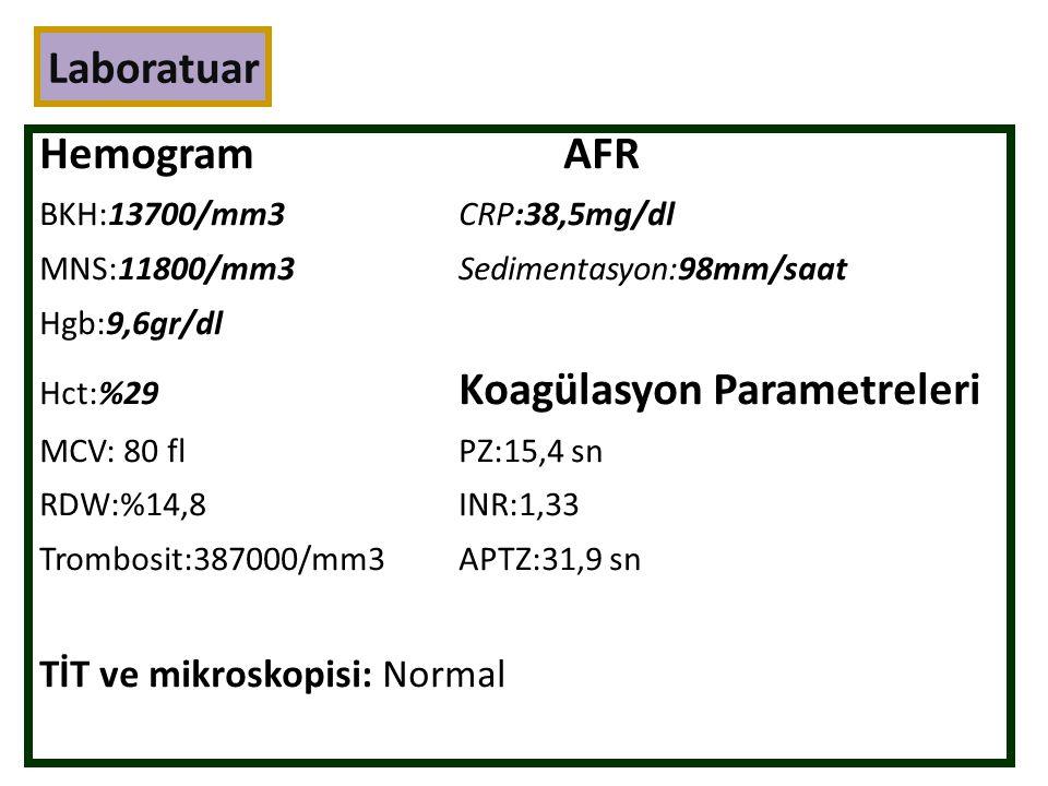 Laboratuar HemogramAFR BKH:13700/mm3CRP:38,5mg/dl MNS:11800/mm3Sedimentasyon:98mm/saat Hgb:9,6gr/dl Hct:%29 Koagülasyon Parametreleri MCV: 80 flPZ:15,