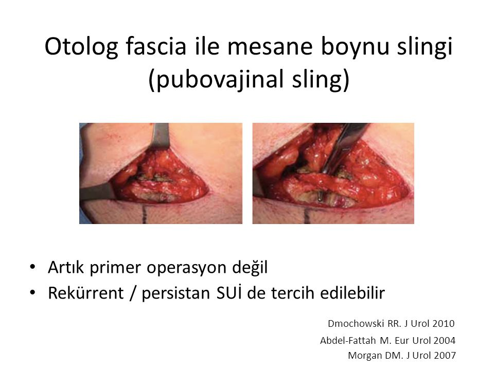 Otolog fascia ile mesane boynu slingi (pubovajinal sling) Artık primer operasyon değil Rekürrent / persistan SUİ de tercih edilebilir Dmochowski RR.