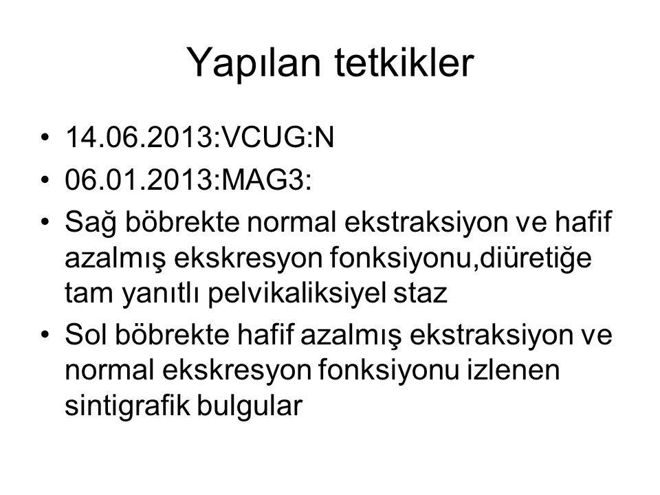 Yapılan tetkikler 14.06.2013:VCUG:N 06.01.2013:MAG3: Sağ böbrekte normal ekstraksiyon ve hafif azalmış ekskresyon fonksiyonu,diüretiğe tam yanıtlı pel