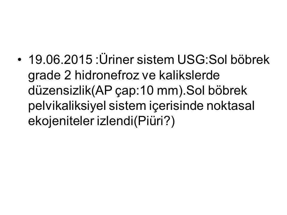 19.06.2015 :Üriner sistem USG:Sol böbrek grade 2 hidronefroz ve kalikslerde düzensizlik(AP çap:10 mm).Sol böbrek pelvikaliksiyel sistem içerisinde noktasal ekojeniteler izlendi(Piüri )