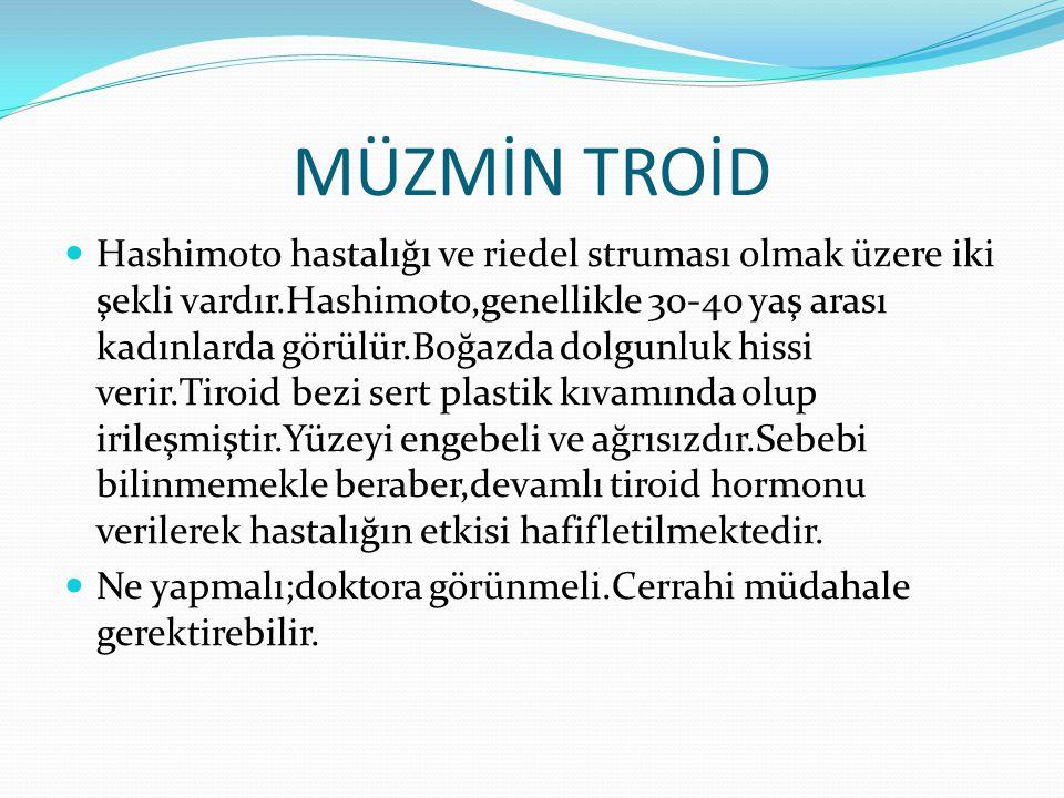 MÜZMİN TROİD Hashimoto hastalığı ve riedel struması olmak üzere iki şekli vardır.Hashimoto,genellikle 30-40 yaş arası kadınlarda görülür.Boğazda dolgunluk hissi verir.Tiroid bezi sert plastik kıvamında olup irileşmiştir.Yüzeyi engebeli ve ağrısızdır.Sebebi bilinmemekle beraber,devamlı tiroid hormonu verilerek hastalığın etkisi hafifletilmektedir.