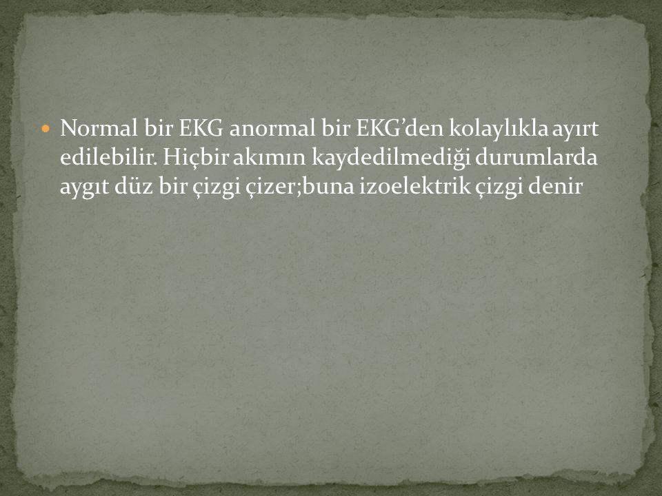 Normal bir EKG anormal bir EKG'den kolaylıkla ayırt edilebilir. Hiçbir akımın kaydedilmediği durumlarda aygıt düz bir çizgi çizer;buna izoelektrik çiz