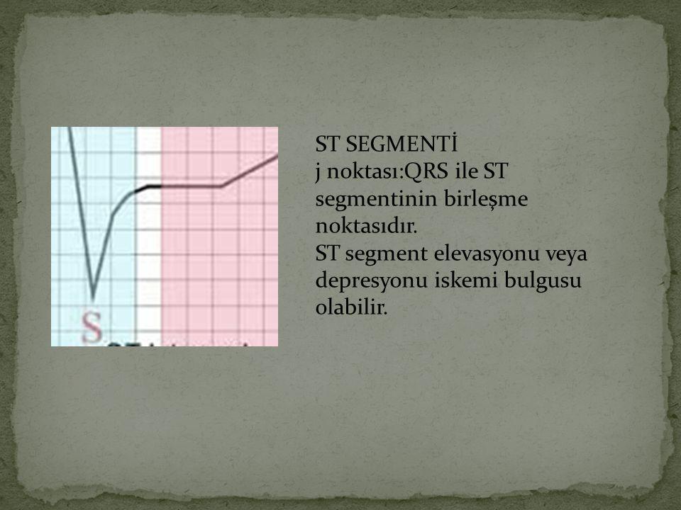 ST SEGMENTİ j noktası:QRS ile ST segmentinin birleşme noktasıdır. ST segment elevasyonu veya depresyonu iskemi bulgusu olabilir.