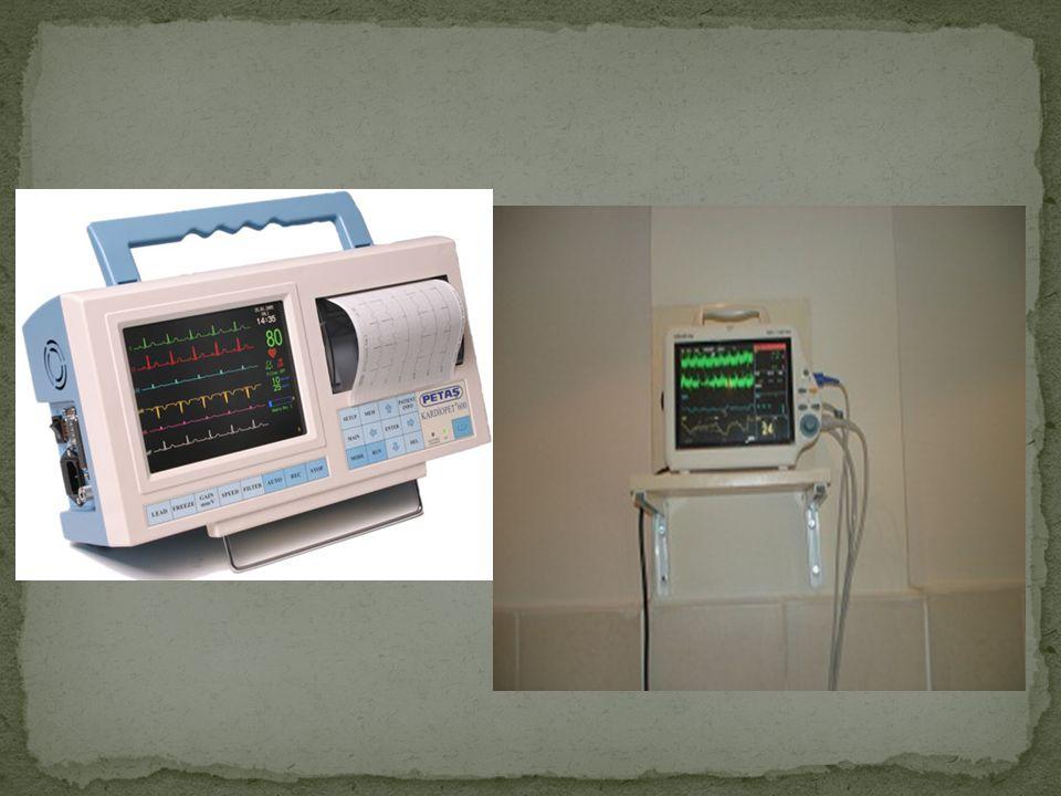 h) hasta üzerinde kablo ve elektrotlar çıkarılır.