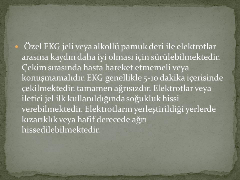 Plusmed pmECG-1200B 12 Kanallı ElektroKardiyografi EKG / ECG Cihazı Yorumlu - Monitörlü Ürün Kodu: plusmed-00095 Marka: PlusMed Garanti Süresi: 24 Ay Fiyatı: 5.049,00 TL