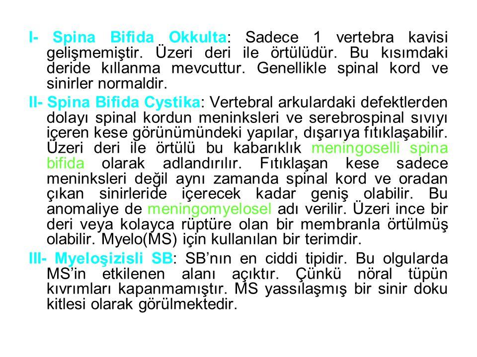 I- Spina Bifida Okkulta: Sadece 1 vertebra kavisi gelişmemiştir. Üzeri deri ile örtülüdür. Bu kısımdaki deride kıllanma mevcuttur. Genellikle spinal k