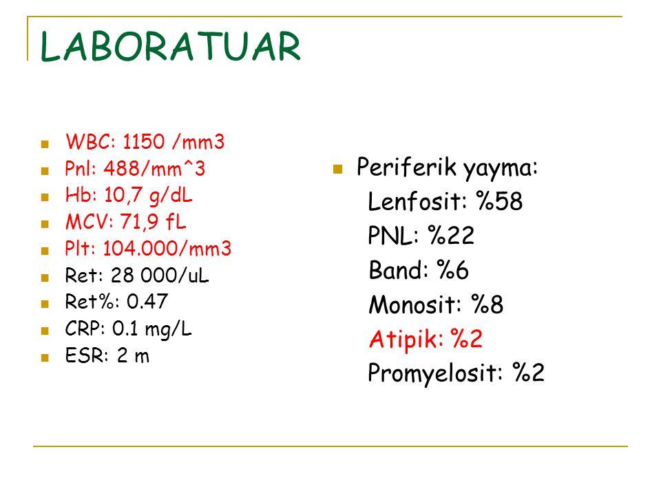 LABORATUAR WBC: 1150 /mm3 Pnl: 488/mm^3 Hb: 10,7 g/dL MCV: 71,9 fL Plt: 104.000/mm3 Ret: 28 000/uL Ret%: 0.47 CRP: 0.1 mg/L ESR: 2 m Periferik yayma: