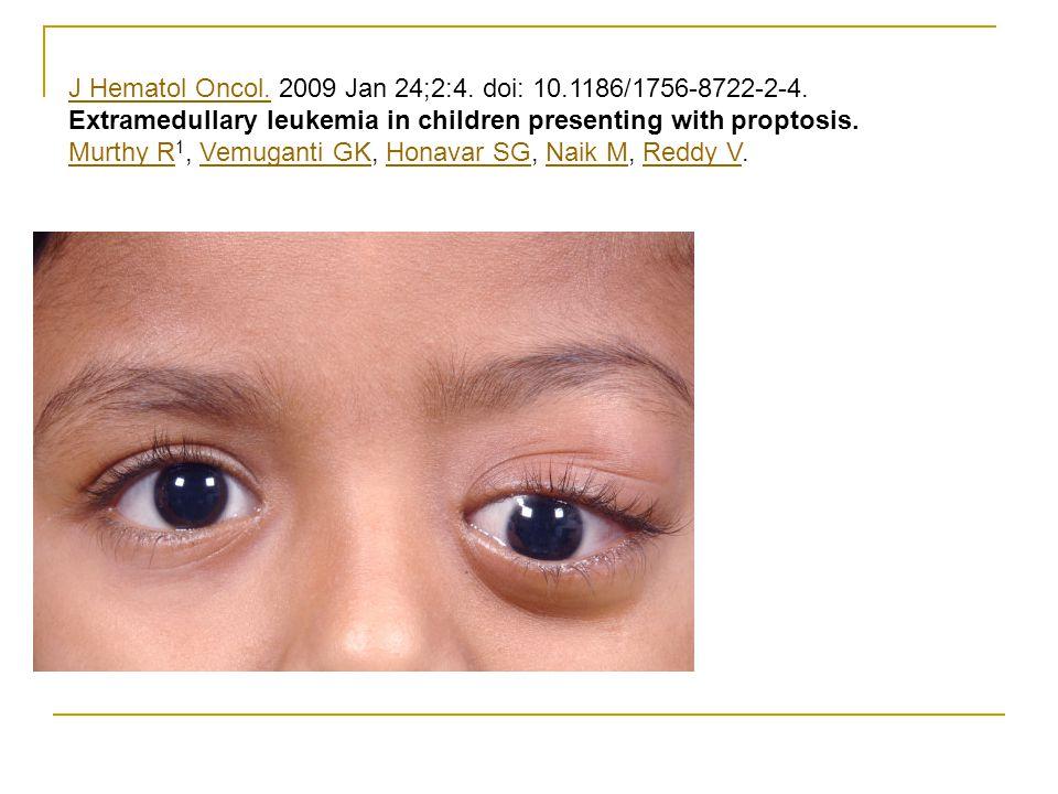 J Hematol Oncol.J Hematol Oncol. 2009 Jan 24;2:4. doi: 10.1186/1756-8722-2-4. Extramedullary leukemia in children presenting with proptosis. Murthy R