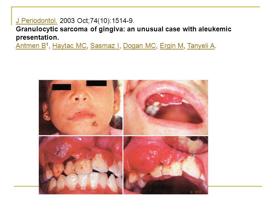 J Periodontol.J Periodontol. 2003 Oct;74(10):1514-9. Granulocytic sarcoma of gingiva: an unusual case with aleukemic presentation. Antmen B Antmen B 1