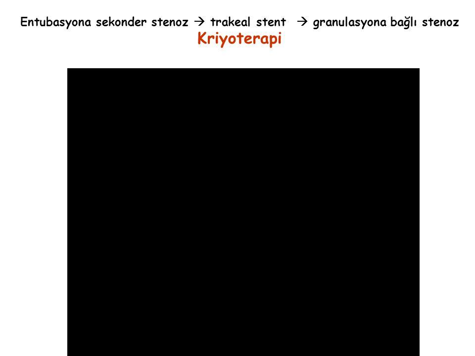 Entubasyona sekonder stenoz  trakeal stent  granulasyona bağlı stenoz Kriyoterapi