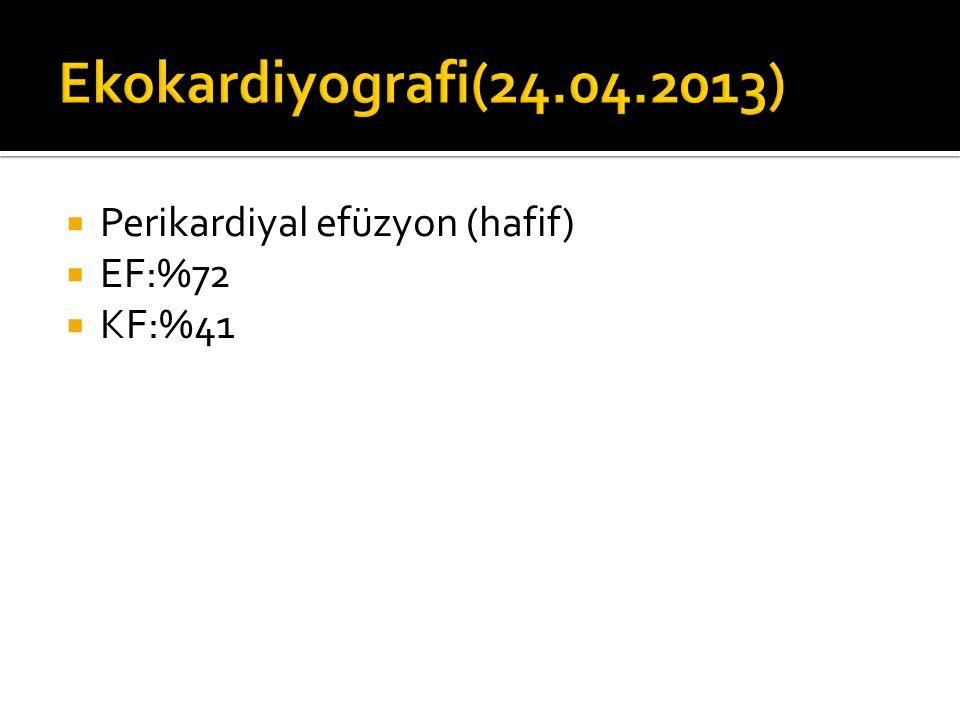  Perikardiyal efüzyon (hafif)  EF:%72  KF:%41