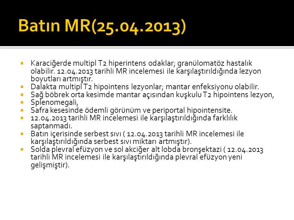  Karaciğerde multipl T2 hiperintens odaklar; granülomatöz hastalık olabilir. 12.04.2013 tarihli MR incelemesi ile karşılaştırıldığında lezyon boyutla