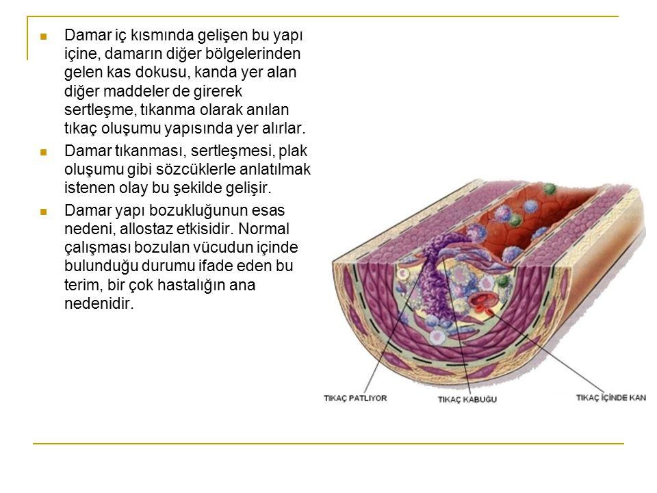 Damar iç kısmında gelişen bu yapı içine, damarın diğer bölgelerinden gelen kas dokusu, kanda yer alan diğer maddeler de girerek sertleşme, tıkanma ola