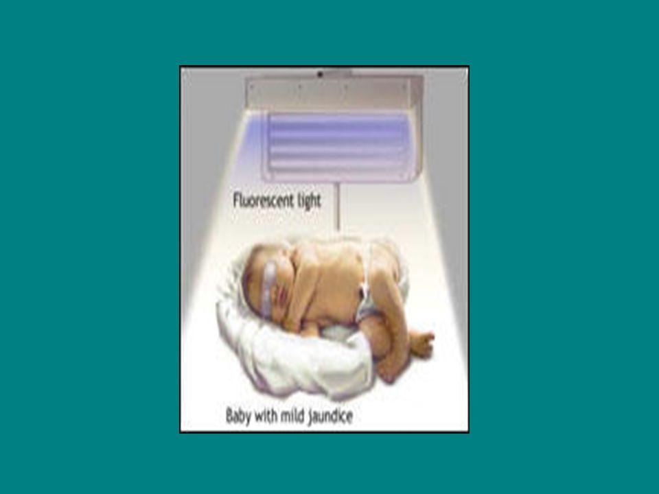fototerapiye başlarken bebeğin doğum ağırlığı, kaç saatlik olduğu ile beslenme durumu kriter alınır.