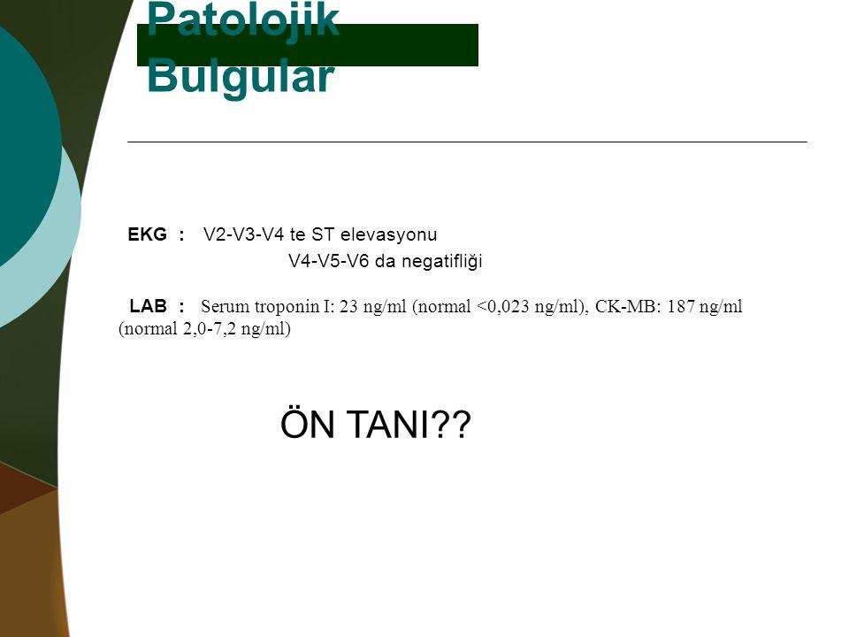 Patolojik Bulgular ÖN TANI?? EKG :V2-V3-V4 te ST elevasyonu V4-V5-V6 da negatifliği LAB : Serum troponin I: 23 ng/ml (normal <0,023 ng/ml), CK-MB: 187