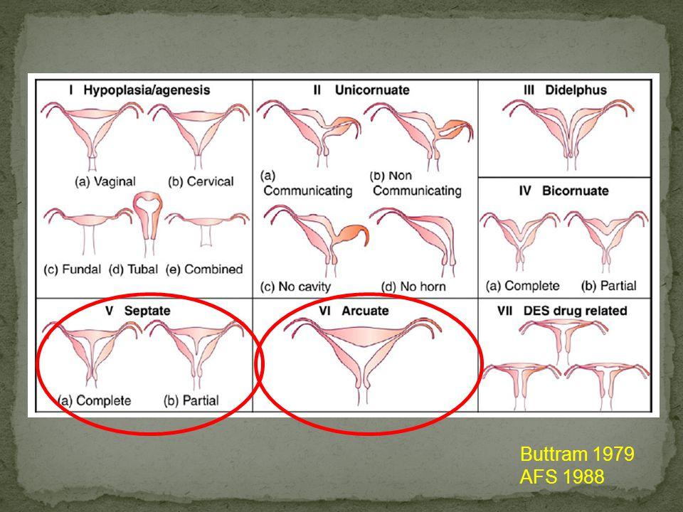ESHRE/ESGE classification of uterine anomalies: schematic representation Grimbizis et al Gynecol Surg 2013