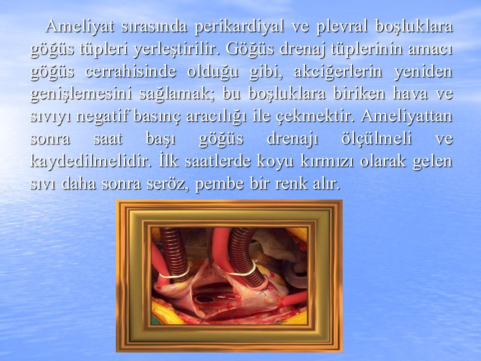 Ameliyat sırasında perikardiyal ve plevral boşluklara göğüs tüpleri yerleştirilir. Göğüs drenaj tüplerinin amacı göğüs cerrahisinde olduğu gibi, akciğ