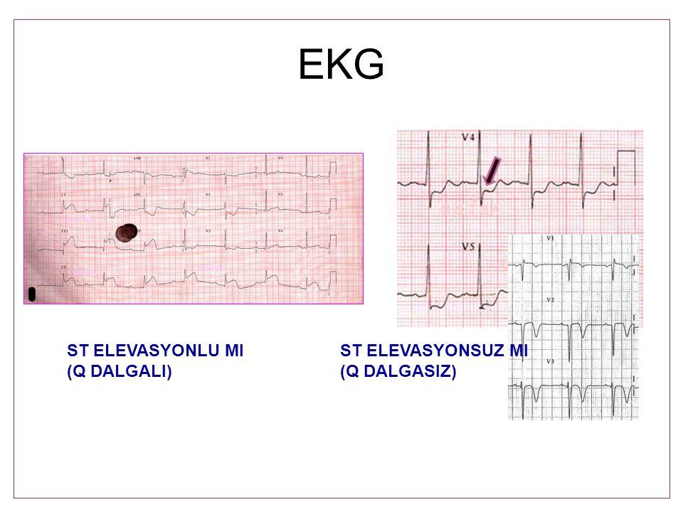 EKG ST ELEVASYONLU MIST ELEVASYONSUZ MI (Q DALGALI)(Q DALGASIZ)