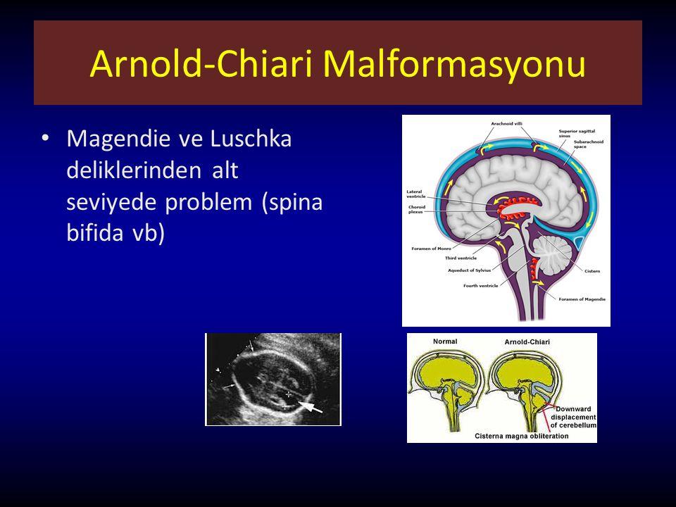 Arnold-Chiari Malformasyonu Magendie ve Luschka deliklerinden alt seviyede problem (spina bifida vb)