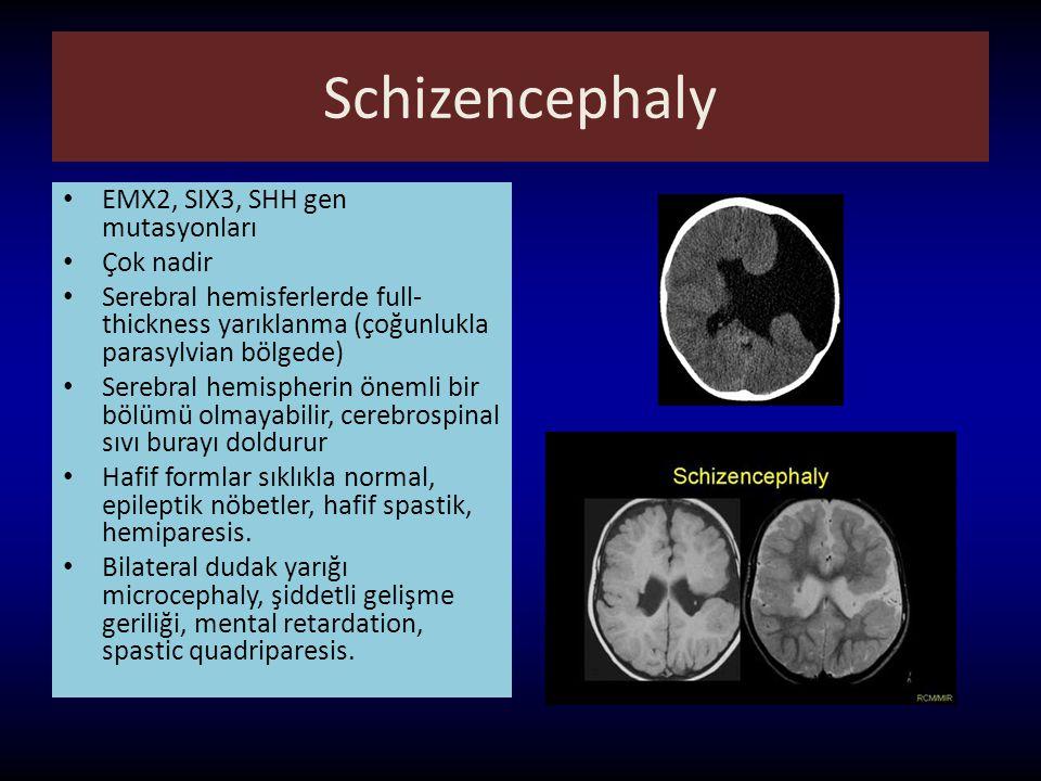 Schizencephaly EMX2, SIX3, SHH gen mutasyonları Çok nadir Serebral hemisferlerde full- thickness yarıklanma (çoğunlukla parasylvian bölgede) Serebral