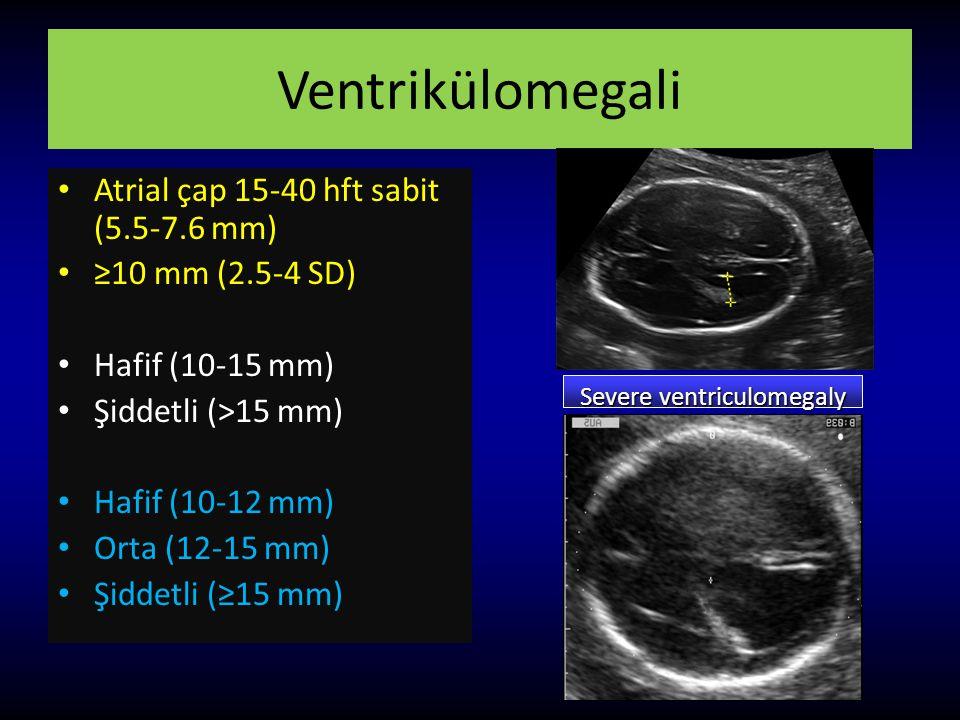 Ventrikülomegali Atrial çap 15-40 hft sabit (5.5-7.6 mm) ≥10 mm (2.5-4 SD) Hafif (10-15 mm) Şiddetli (>15 mm) Hafif (10-12 mm) Orta (12-15 mm) Şiddetl