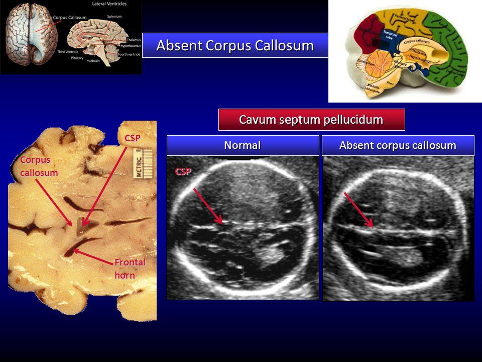 Cavum septum pellucidum Corpus callosum Frontal horn CSP Absent Corpus Callosum Normal Absent corpus callosum CSP