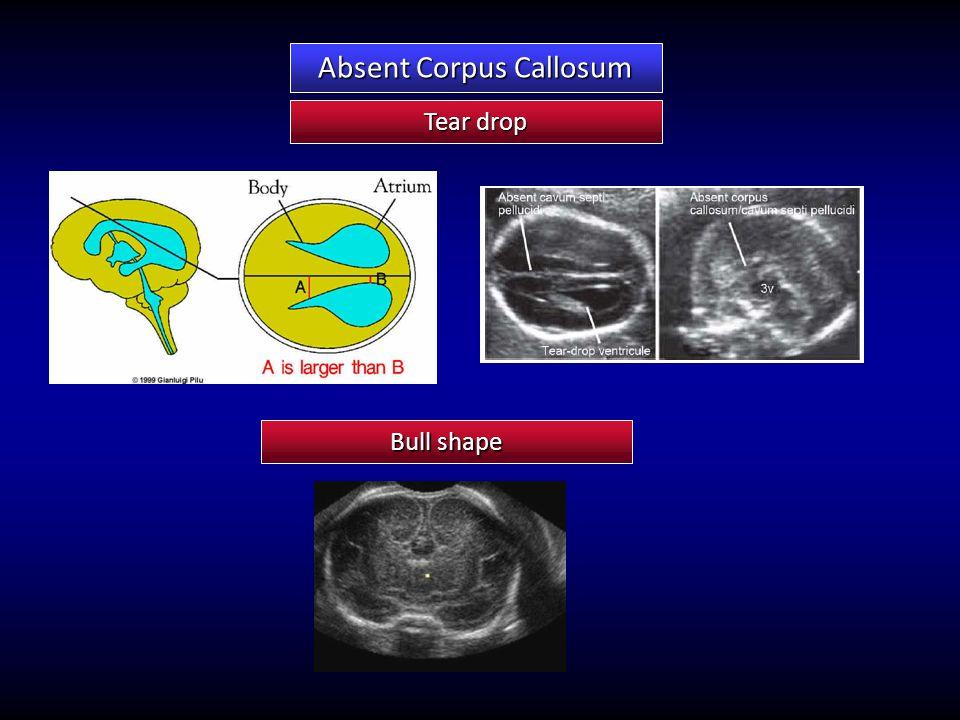 Tear drop Absent Corpus Callosum Bull shape