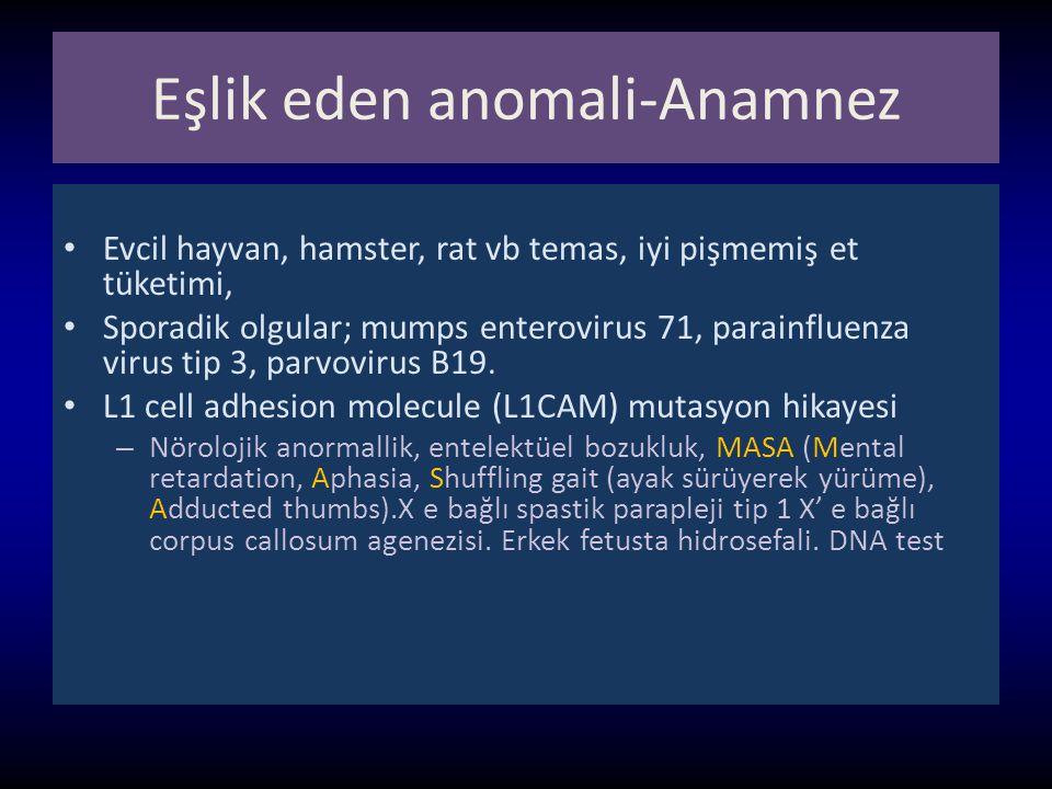 Eşlik eden anomali-Anamnez Evcil hayvan, hamster, rat vb temas, iyi pişmemiş et tüketimi, Sporadik olgular; mumps enterovirus 71, parainfluenza virus