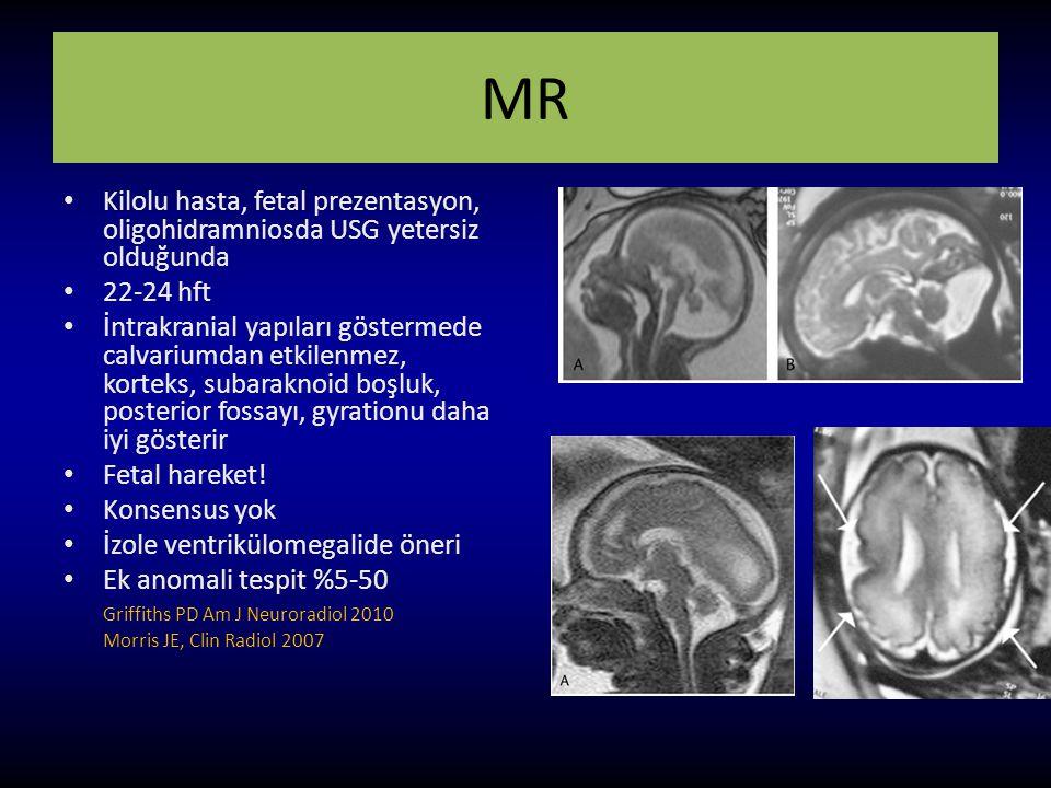 MR Kilolu hasta, fetal prezentasyon, oligohidramniosda USG yetersiz olduğunda 22-24 hft İntrakranial yapıları göstermede calvariumdan etkilenmez, kort