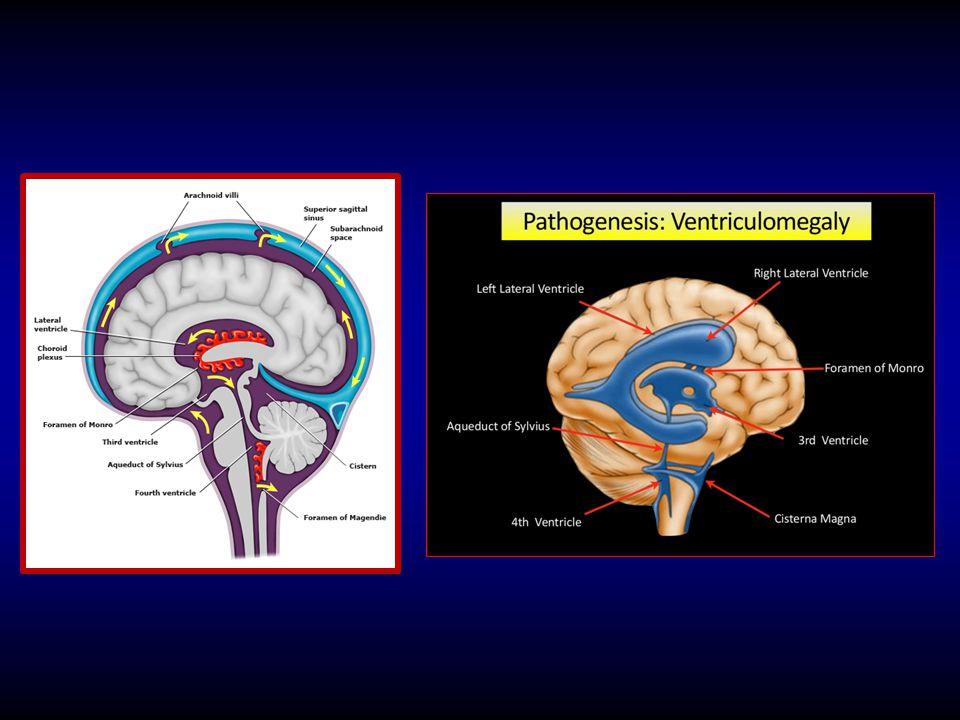 Megalencephaly HC 98.